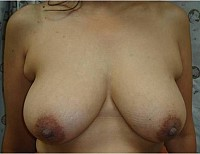 Breast Reduction vertical scar