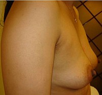 Breast Augmentation by Fat/Implant