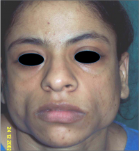 Autologous Fat For Face Augmentation