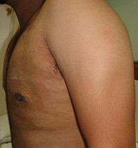 Gynaecomastia (Male Breast Enlargement)