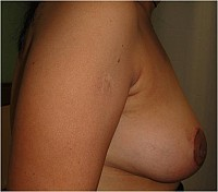 Breast Reduction vertical scar and accessory breast correction
