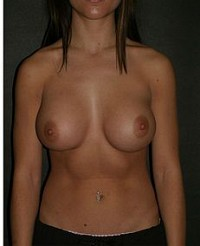 Breast Enlargement with Implant