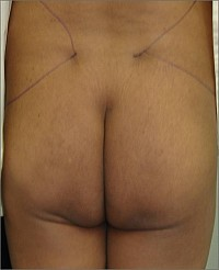 Gluteal Augmentation with fat